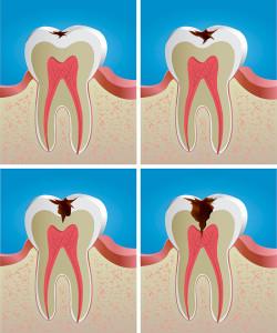 Dental Risks Tooth Decay Cavities Gum Disease