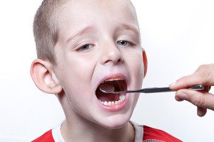 child-dental-cavity