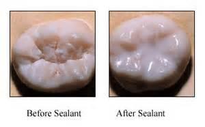 Sealant B & A